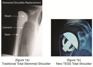 Minimally Invasive Total Shoulder Replacement-New TESS Total Shoulder performed by Dr. Bartholomew.