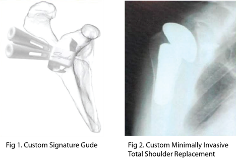 'Signature' Custom Fit Total and Reverse Shoulder Replacement
