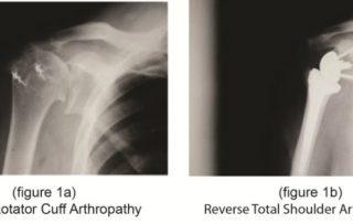 Dr. Bartholomew has a new option for Shoulder Replacement called Reverse Total Shoulder Arthroplasty
