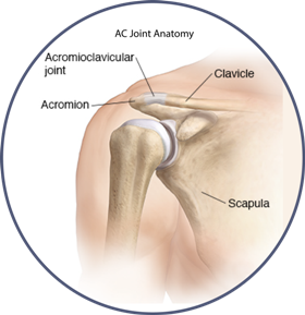 Learn about Separated Shoulder treatment options. Schedule a consultation with Dr. Bartholomew to diagnose your AC Joint Separation. Call (248) 673-0500. AC joint photo.