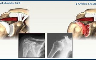 Bone and Joint Specialists- Dr. Bartholomew, top shoulder surgeons in Michigan- arthritis in shoulder photo