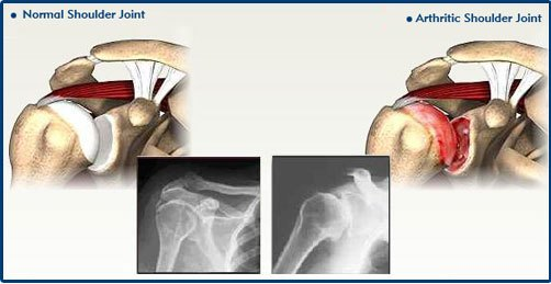 Bone and Joint Specialists- arthritis in shoulder photo