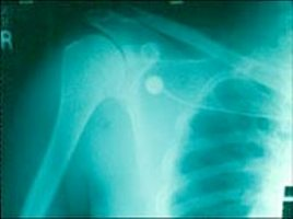 Dislocated shoulder photo.
