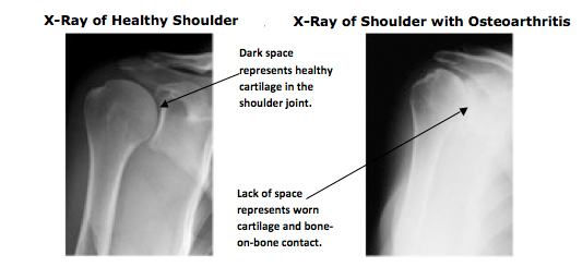 Causes of Shoulder pain-Shoulder arthritis x-ray photo