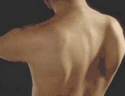Winged Scapula (Scapular Dyskinesis)