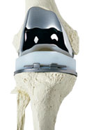 Total Joint Replacement, Total Arthoplasty, Knee Implant