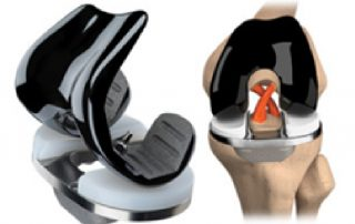 Dr. Philip Schmitt offers the JOURNEY II Active Knee System in Waterford, MI.