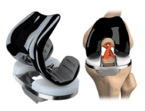 JOURNEY II Active Knee System